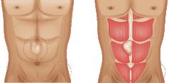 Abdominal hernia