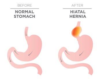 hiatal hernia illustration